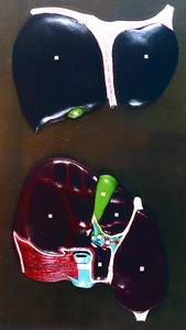 Барельефная модель Печень Диафрагмальная и висцеральная поверхности